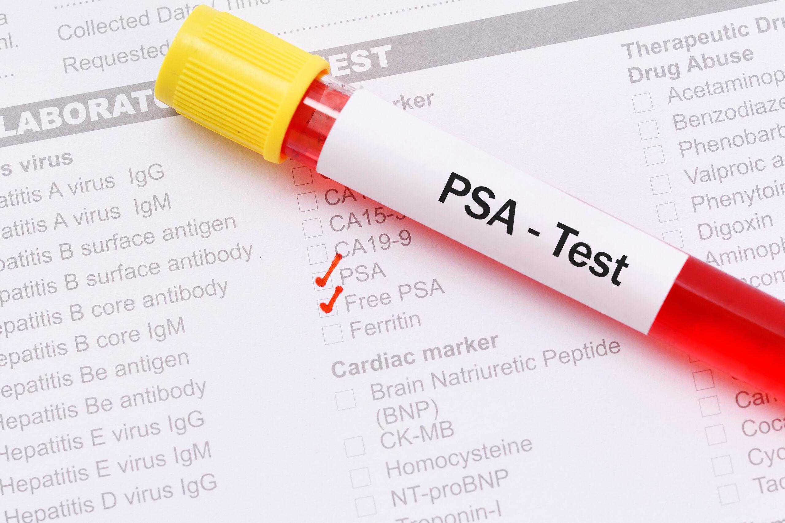 biopsja fuzyjna prostaty - test PSA